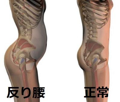 正常な骨盤と反り腰の骨盤のイラスト